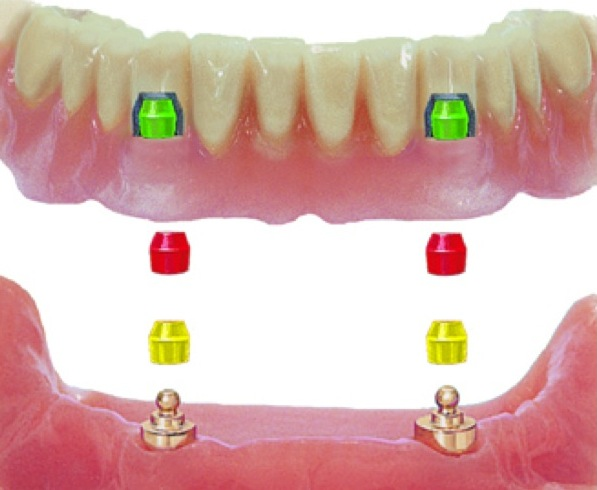 Implant Overdenture Attachments http://www.aiidglobal.org/products/implant-overdenture-therapy-and-principles-of-attachment-selection/implant-overdenture-therapy-and-principles-of-attachment-selection-duplicate/